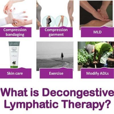 What is decongestive lymphatic therapy (DLT)